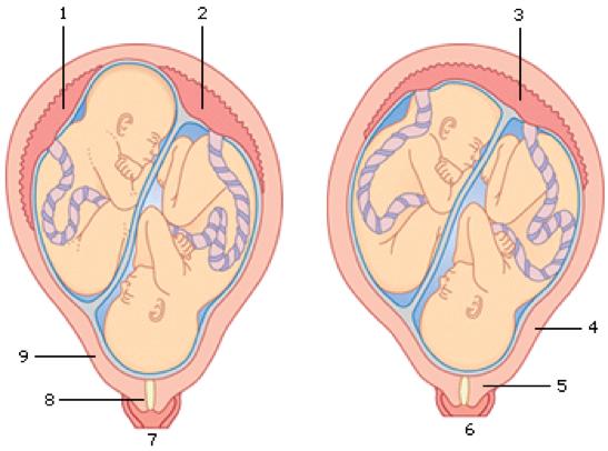 Tweelingzwangerschap Marieke Nesteldrang En Bizarre